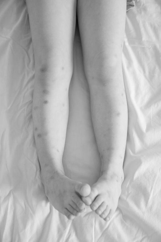 bőrgyógyászat poloska